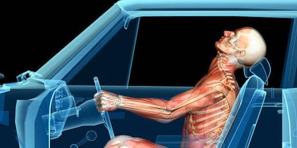 Florida Traumatic Brain, Head, Neck, & Spinal Cord Injury Lawyers